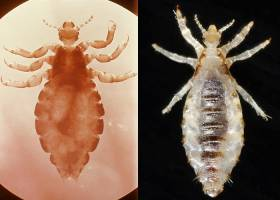 The head louse, left, and body louse, right, differ in habits, habitat and in th