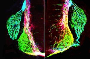 UCLA Broad Stem Cell Research Center/Neuron  										 Left: axons (green, pin