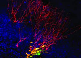 The figure shows an individual neural stem cell (green) and its daughter neurons