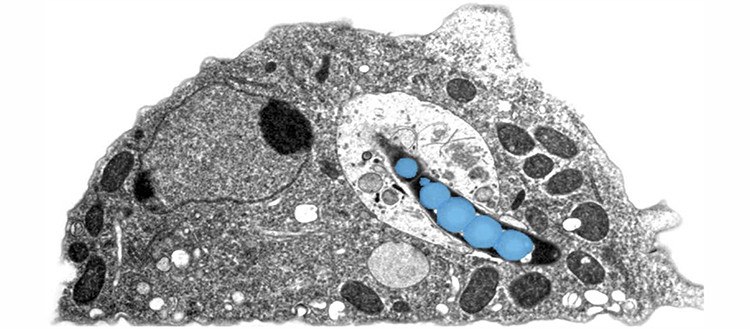 Electron microscopy photograph of an amoeba infected with mycobacteria (coloured