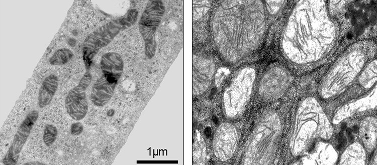 Mitochondria of liver cells by electronic microscopy. On the left, normal mice: