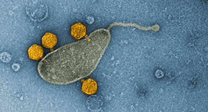 The viruses, colored orange, attached to a membrane vesicle from the SAR11 marin