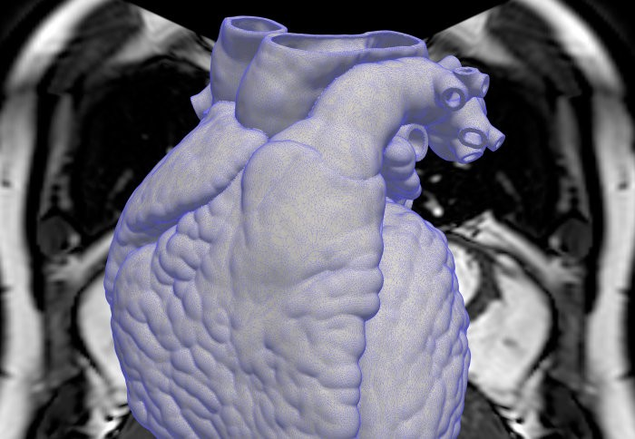 Combining heart scans, health data and machine learning to unlock new treatments